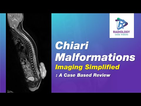 Chiari II malformation | Radiology Reference Article
