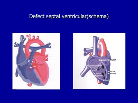 PPT - MALFORMATII CARDIACE CONGENITALE PowerPoint