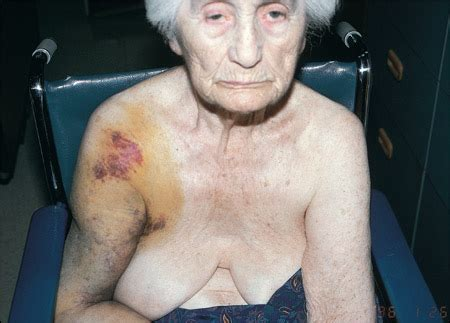 Shoulder Fracture-Dislocation in an Elderly Woman: Would